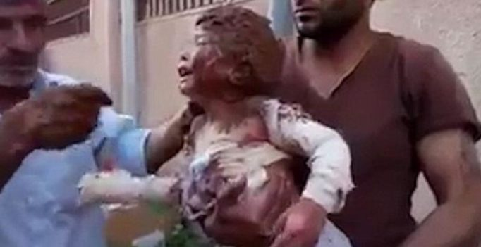 Video shows Syrians using wet mud to treat girl burnt by deadly 'Napalm bombing'