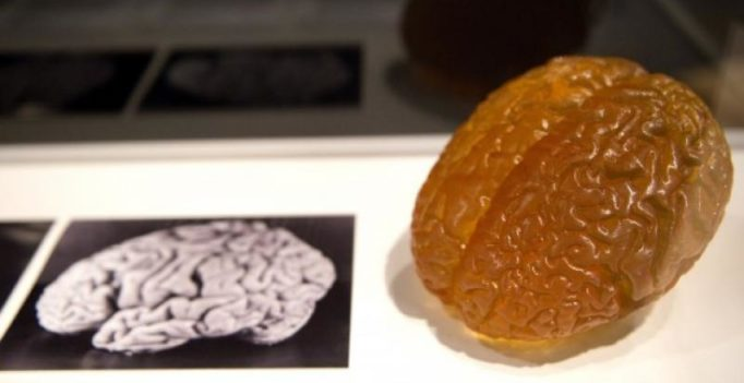 Belgian psychiatric hospital to have biggest pickled brain collection.