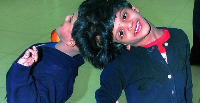 Telangana govt to check if NGO will help conjoined twins