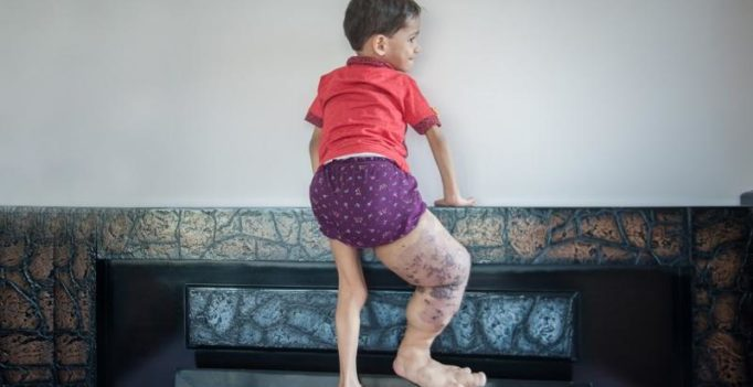 Delhi boy's leg swells to four times its size due to genetic disorder