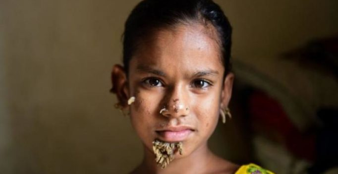 10-yr-old may be first female with tree-man syndrome in Bangladesh