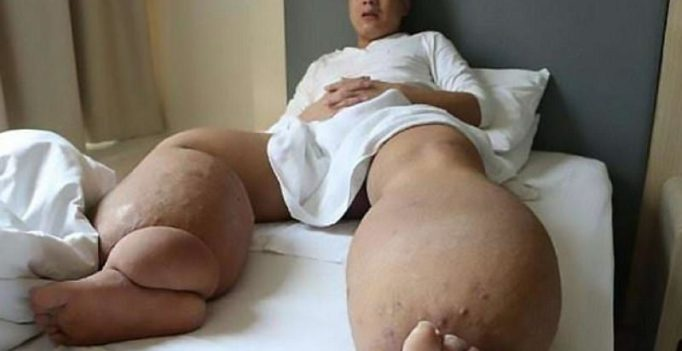 Chinese man with legs weighing the same as giant panda fights for survival