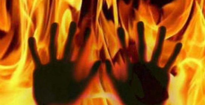 Hyderabad: In love with same girl, teens burn themselves