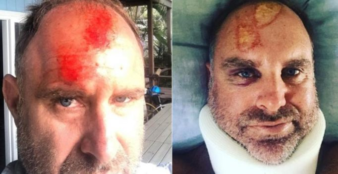 Matthew Hayden fractures spine, suffers head and neck injuries in surf accident